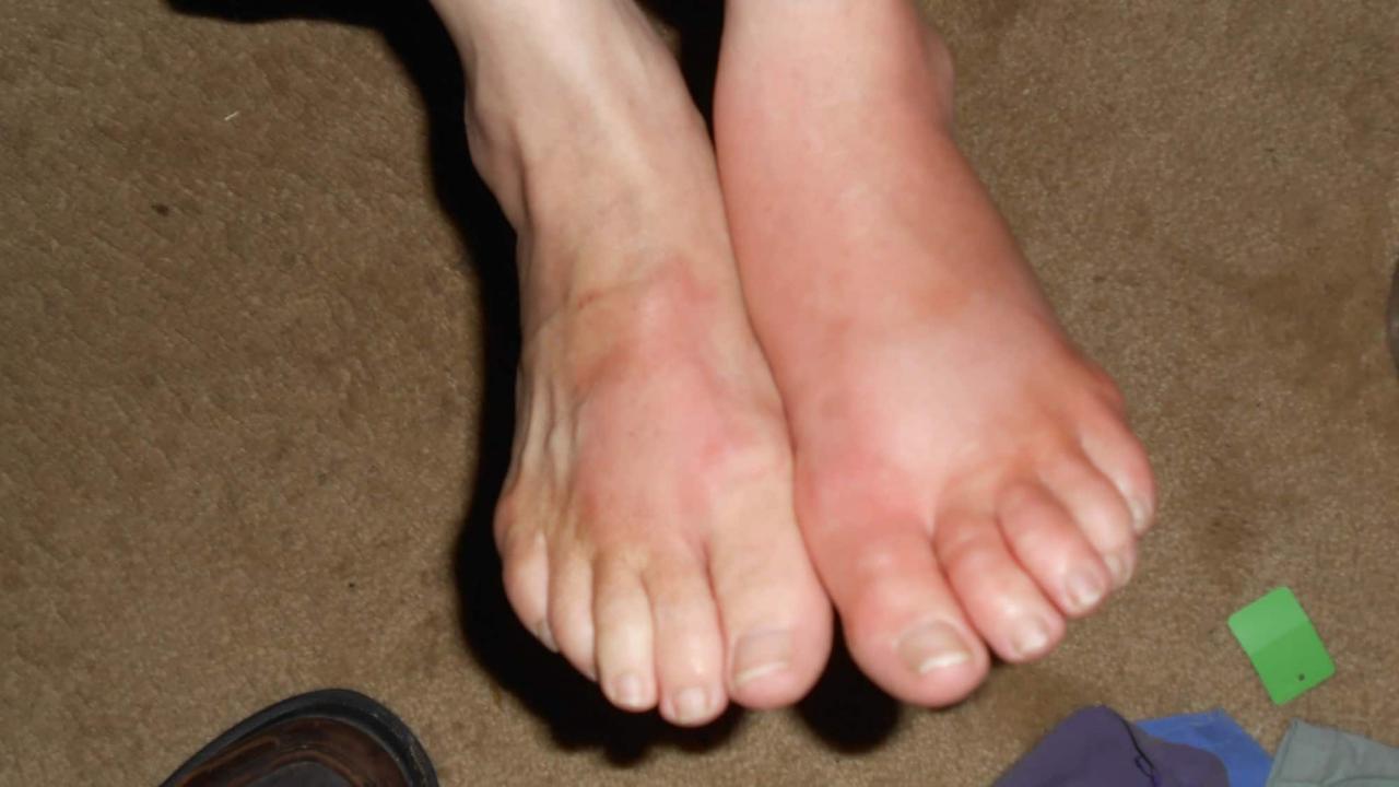 صورة علاج تجمع؛ في القدمين , يعاني منه الكثير