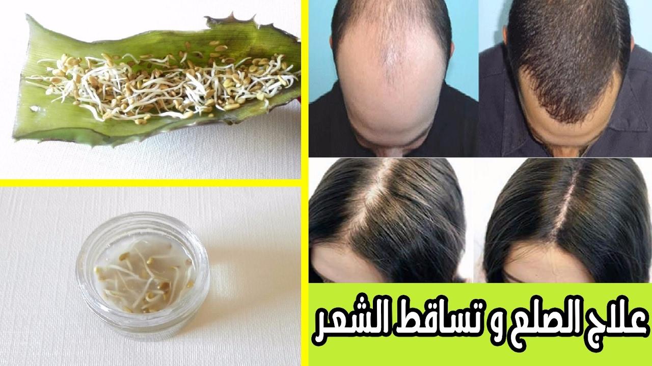 صورة علاج تساقط الشعر للرجال بالاعشاب الطبيعية , حل نهائي وجذري للصلع