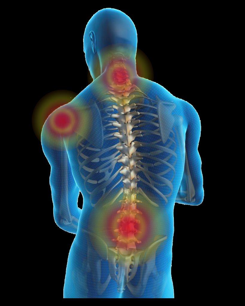 صورة علاج تكلس العمود الفقري , الالم العمود الفقري وطرق علاجها