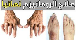 صورة علاج الروماتيزم في الدم , يحدث كثيرا وخاصة للسيدات