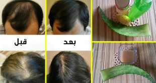 صورة تسريع نمو الشعر للرجال , يعاني منه بعض الرجال