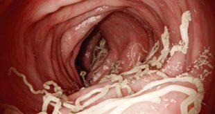 صورة علاج الدود في البطن , ديدان فى جسم الانسان