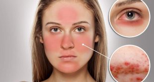 صورة ماهو علاج حساسية الوجه , بخطوات بسيطه ونصائح مفيده يكون العلاج