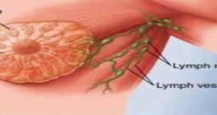 ماهي اعراض سرطان الثدي الحميد , قى نفسك واطمئنى