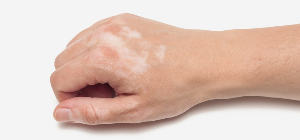 صورة علاج البهاق بالاعشاب , عالج اكثر الامراض الوراثيه صعوبه
