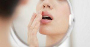 صورة علاج التهاب الشفايف من البرد , تخلص من انزعاجها فى ايام معدوده