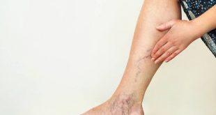صورة علاج جلطة الساق السطحية , لا تقلق ولكن بادر بالعلاج بسرعه