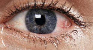 صورة علاج عوامات العين بالاعشاب , ما حل هذه البقع السوداء والخطوط فى رؤيتى