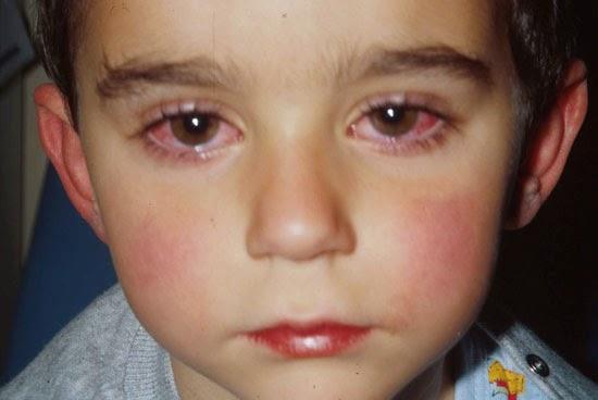 صورة موش متخيله ان العين ممكن تعمل كده , اعراض العين عند الاطفال