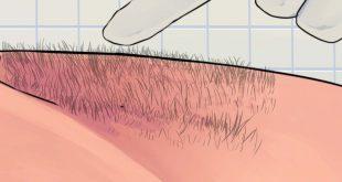 طرق ازالة الشعر , افضل طريقه لازالة شعر المناطق الحساسه للعروس