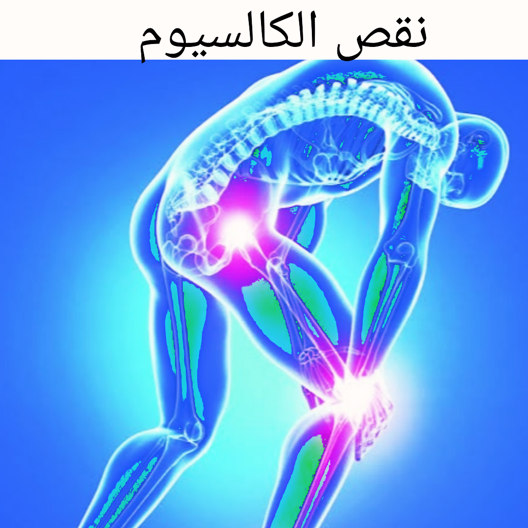 صورة اعراض نقص الكالسيوم 4668